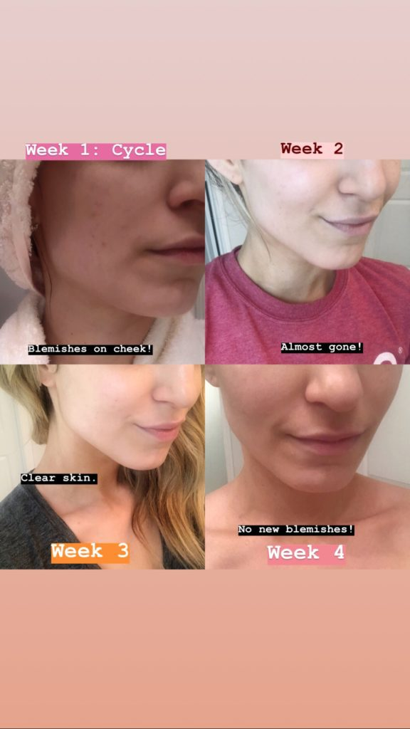Weekly Results of Tula Acne Gel